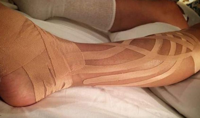 Así quedó la pierna de Paulina Rubio tras su caída en pleno concierto
