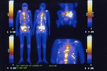 Pruebas genéticas permiten tratamiento preciso y dirigido en cáncer