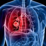 Conmemoran en México primer Día nacional de cáncer del pulmón