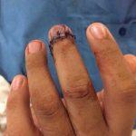 Cirugía reconstructiva salva extremidad de derechohabiente del ISSSTE en Xalapa