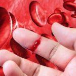 Habrá nuevo medicamento para tratar la hemofilia en México