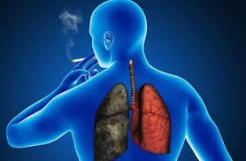 Innovadora terapia para cáncer de pulmón triplica supervivencia de pacientes