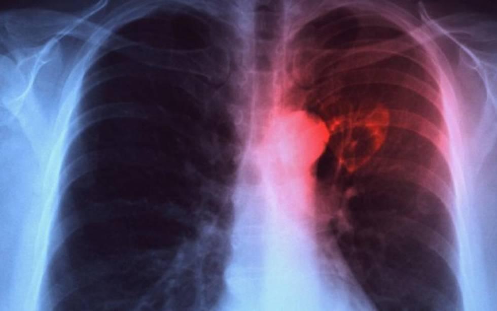 Tuberculosos asociada en el 40 por ciento de las muertes de personas con sida: AHF México