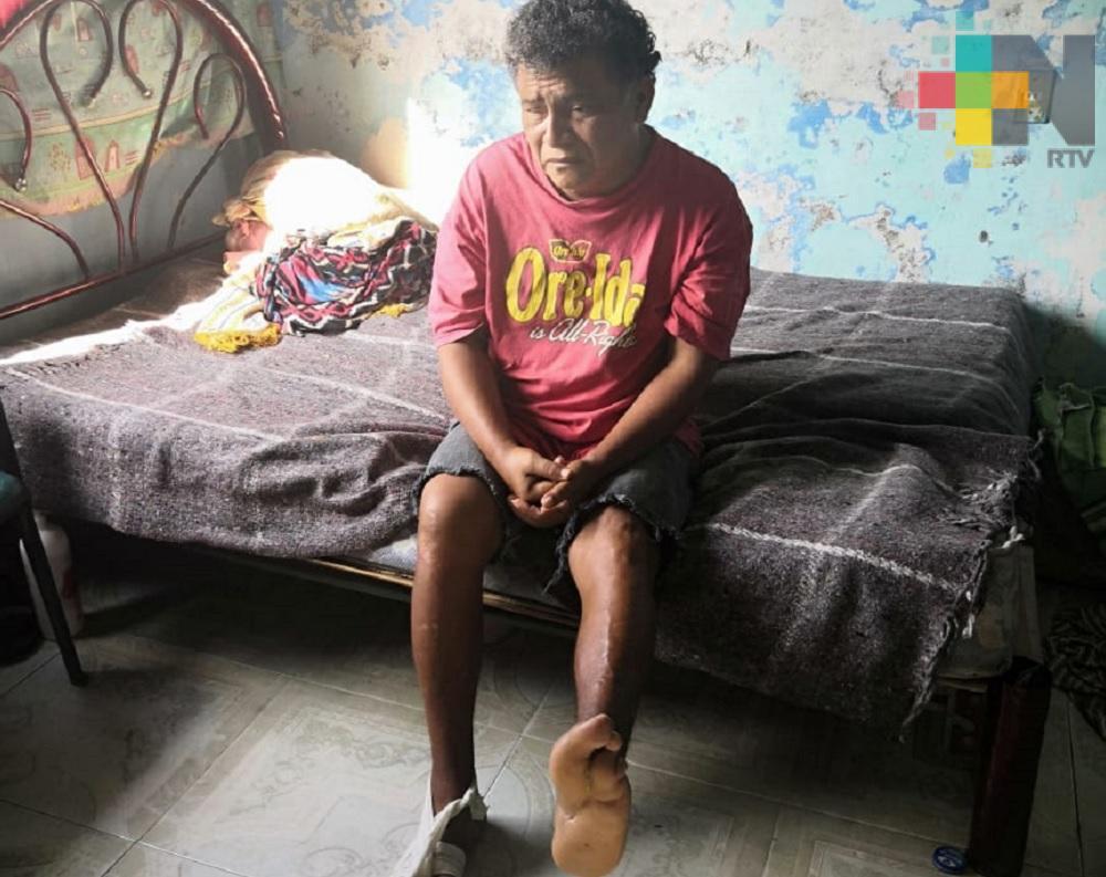 Ciudadano pide apoyo para continuar tratamiento de diabetes, en Coatzacoalcos