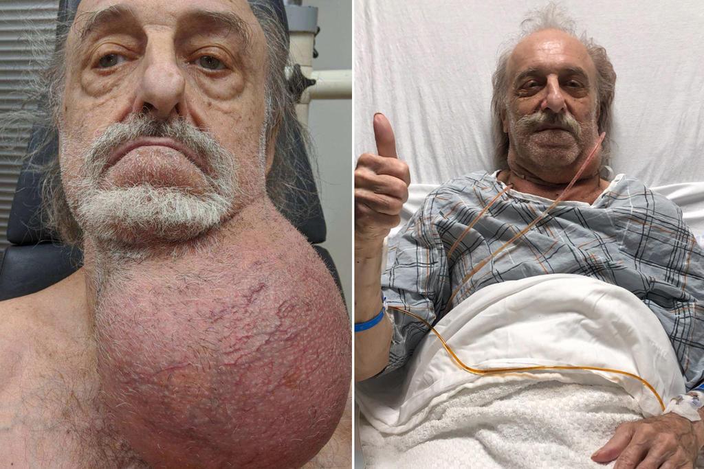 Médico extrae tumor del tamaño de un melón del cuello de un hombre