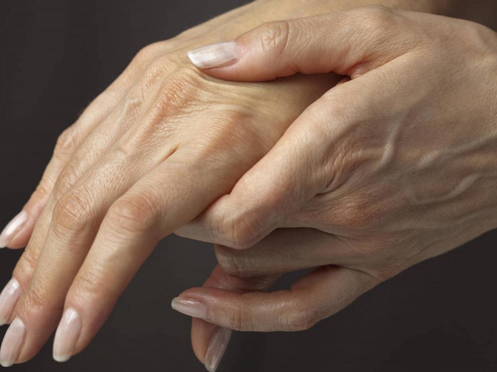 Descubren combinación de medicamentos que podría revertir la artrosis