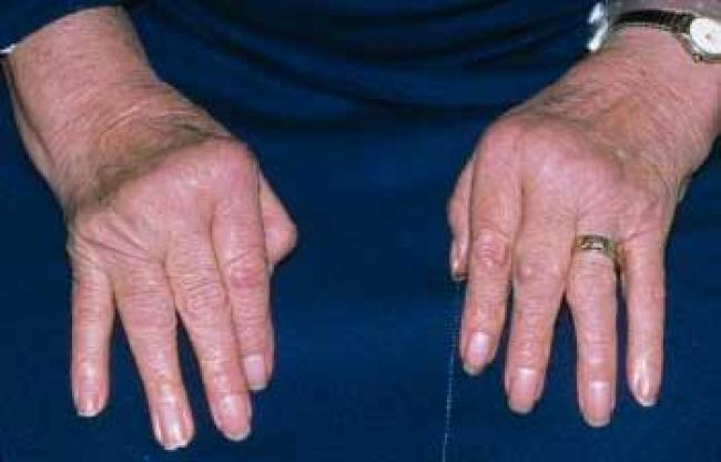 Recomiendan serie de medidas para prevenir artritis reumatoide