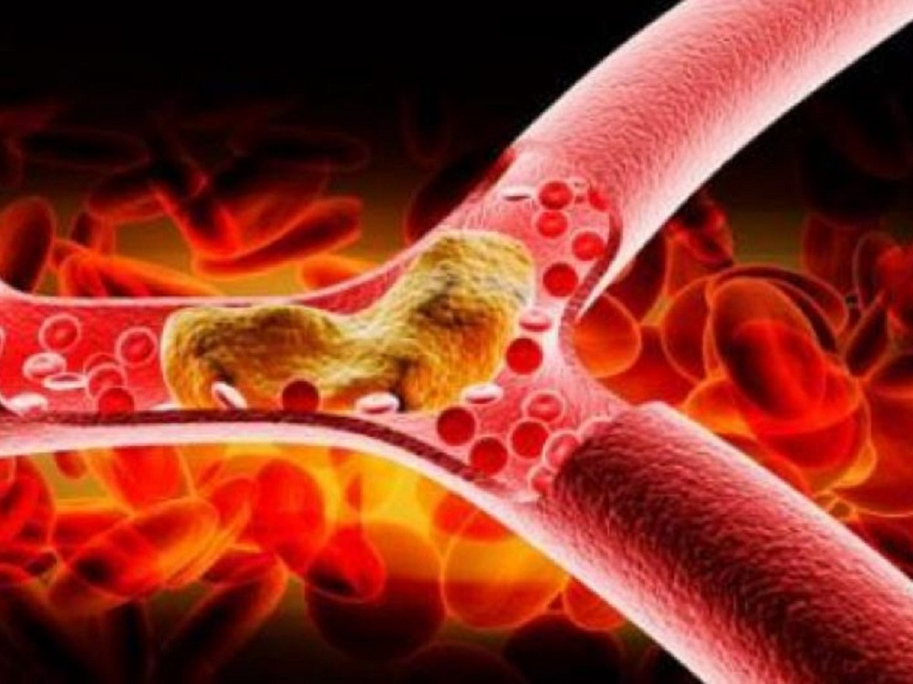 Grasa en las arterias podría ser benéfica: Estudio