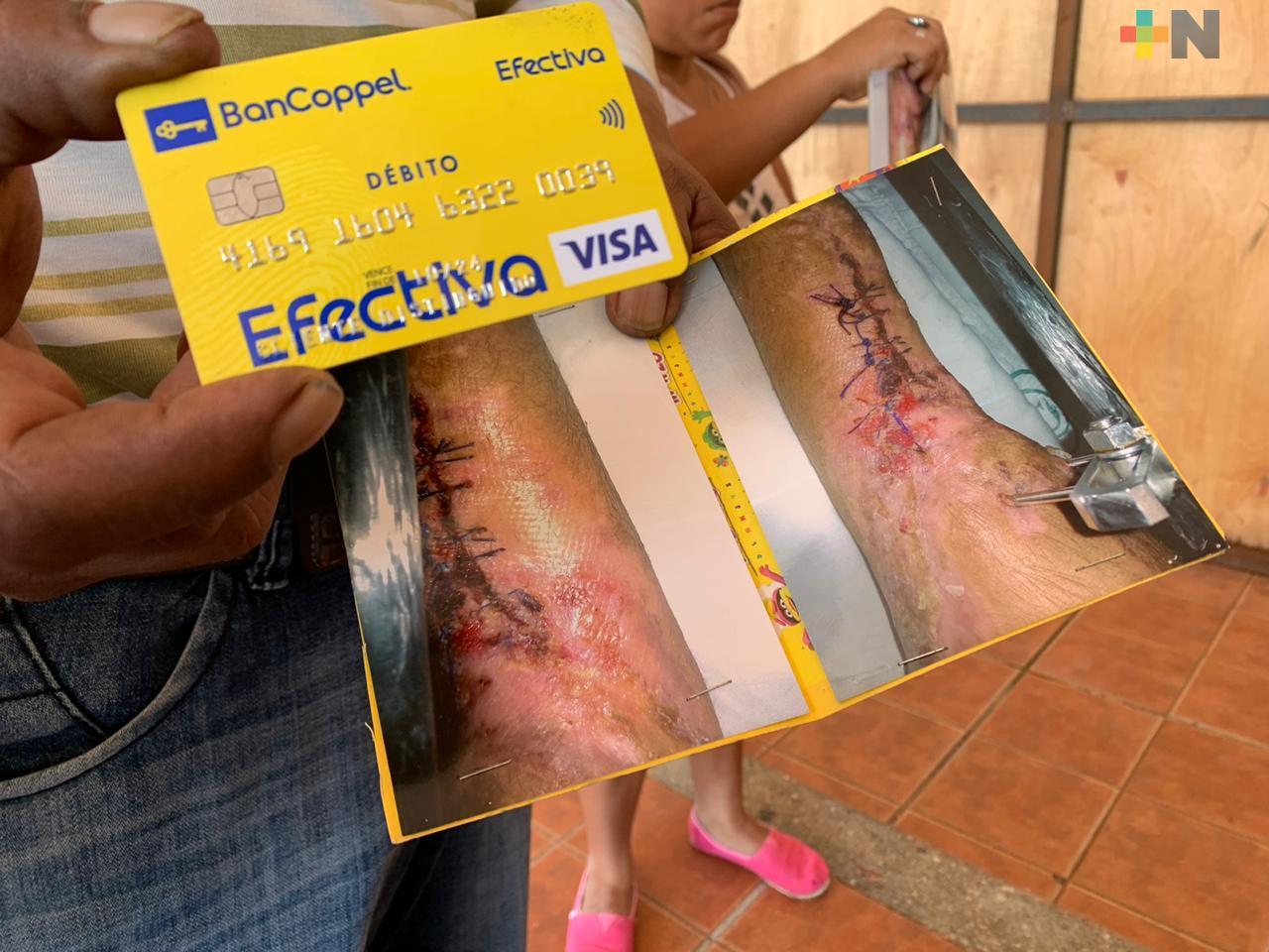 Piden apoyo para injerto de hueso a menor atropellado en Coatzacoalcos