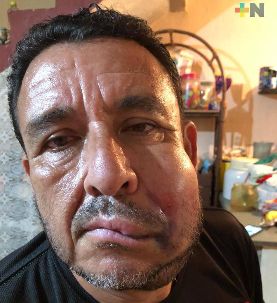 Por agredir a árbitro en juego amistoso, separan a jugador del Club Veracruzano de Futbol Tiburón