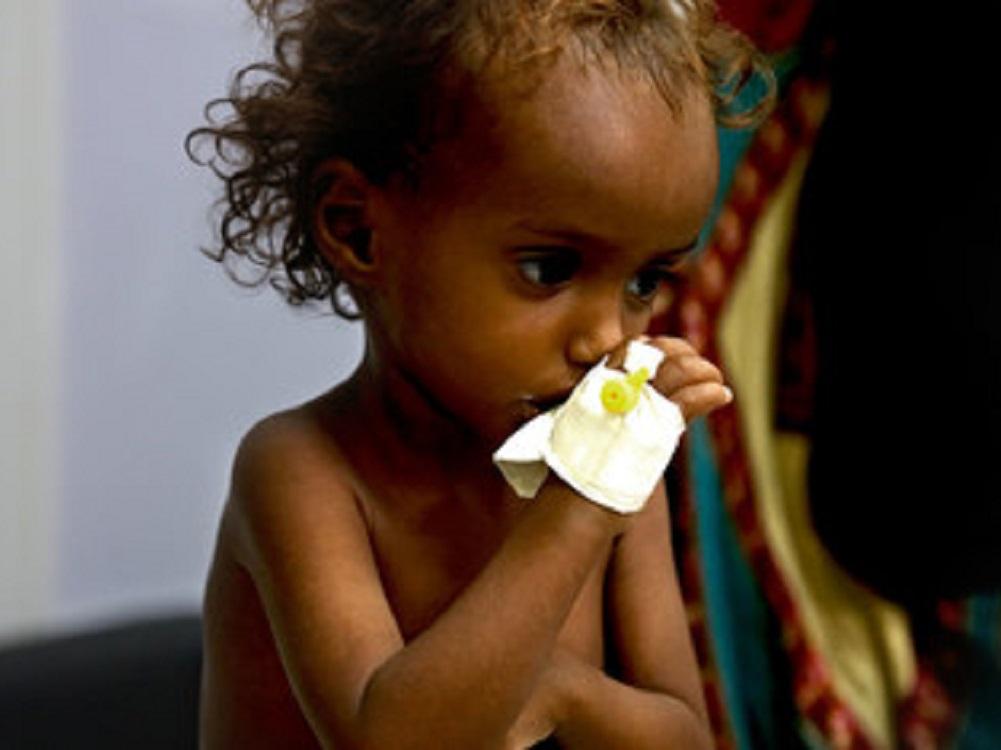 Yemen podría tener más de un millón de infectados con  coronavirus