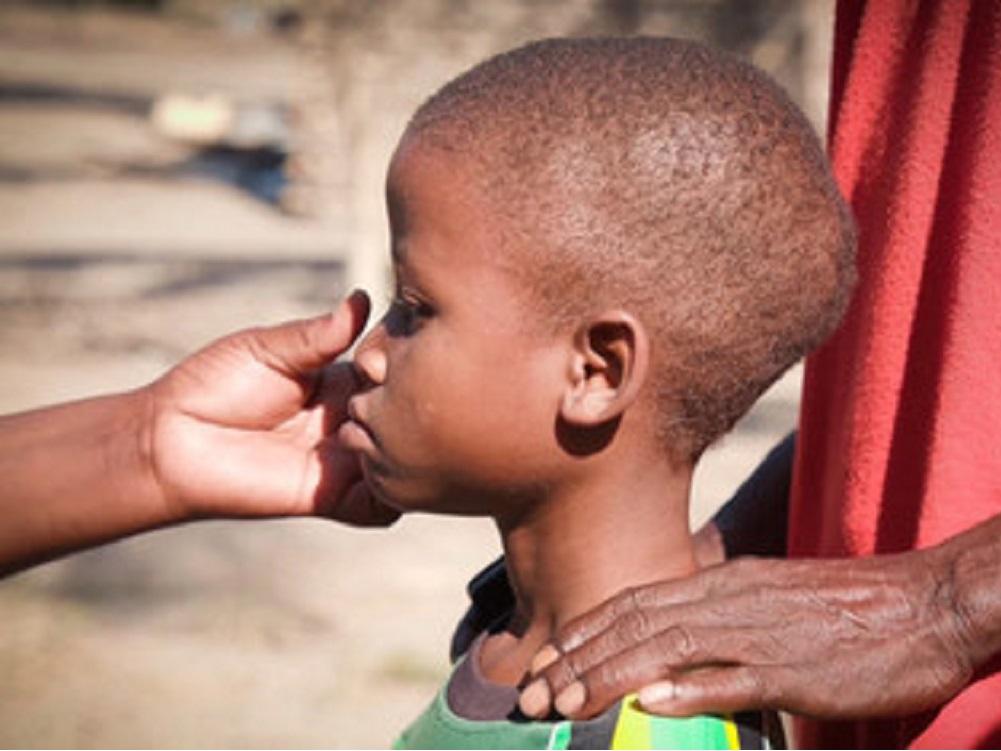 SIDA mató a casi 110.000 niños en 2019, 320.000 más se contagiaron de VIH