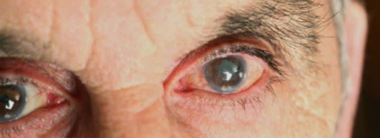 Glaucoma, segunda causa de ceguera en el mundo. Conoce sus mitos y realidades
