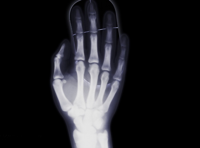 Dormir poco aumenta el riesgo de osteoporosis en mujeres