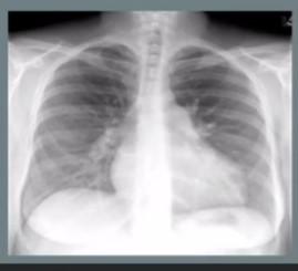 Hipertensión pulmonar puede se curable si se detecta a tiempo