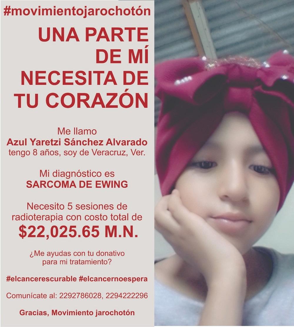 Piden apoyo para pagar radioterapias de Azul Yaretzi, niña de 8 años con sarcoma de Ewing